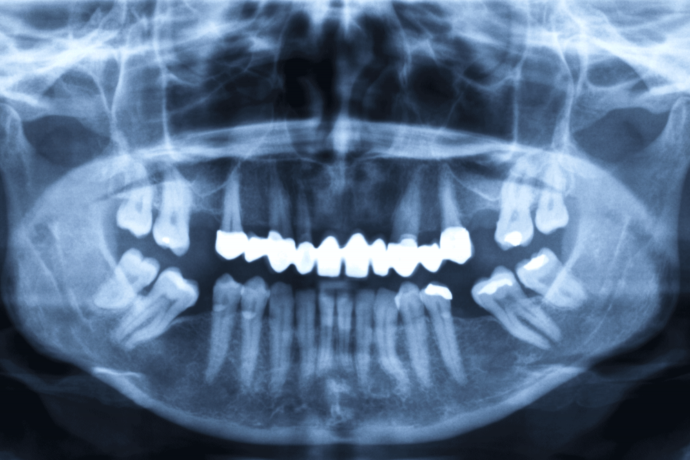 Panorex Technology, Worceser Dentists